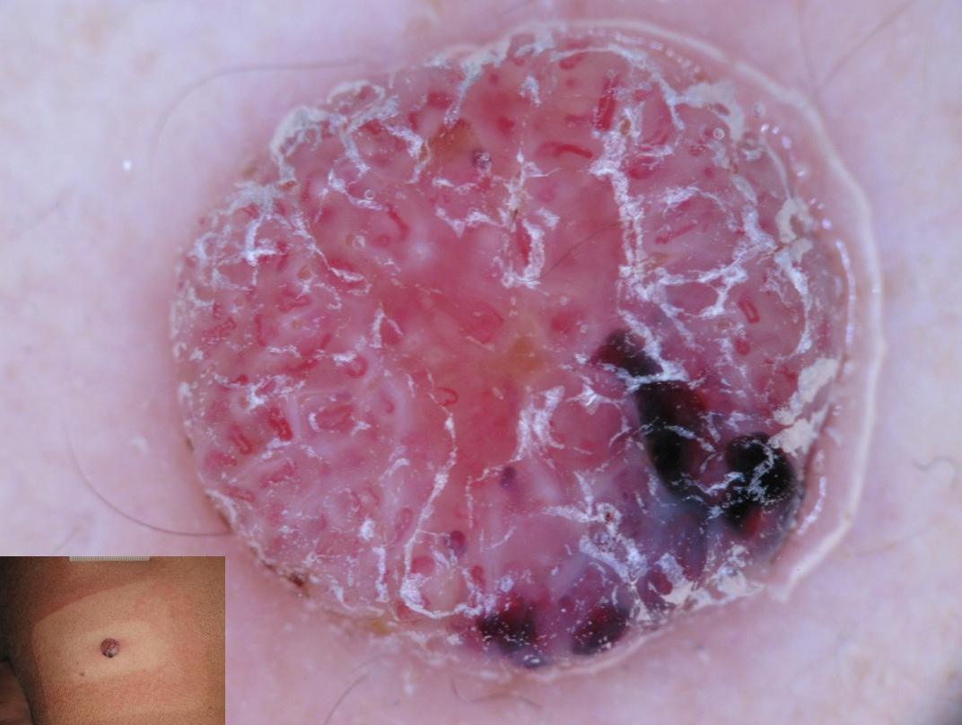 Figure 2: Nodular hypomelanotic melanoma with hairpin, glomerular, linear irregular vessels (polymorphic vessels) and blue-white veil over a milky-red area.