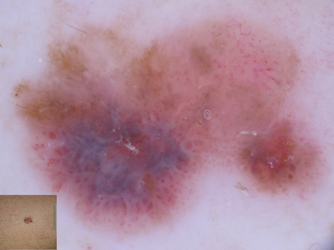 Figure 5: More advanced hypomelanotic melanoma with polymorphous vessels. Blue-white veil, and remnants of pigment network and brown globules are also detectable.