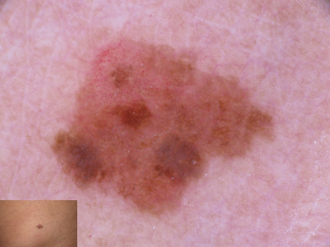 Figure 6: Early invasive hypomelanotic melanoma with dotted vessels in the upper part and pigment network in the lower part of the lesion.