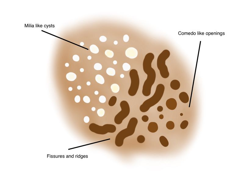 File:Milia like cysts comedo like openings schematic new.jpg