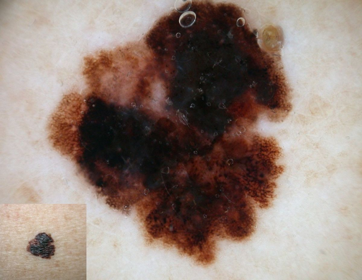 Figure 1: A pigmented lesion showing atypical pigment network (2 points), brown-black blotches (1 point) and a regression area (1 point). The total score is 4 and indicates a suspicious lesion. Histopathologic diagnosis: melanoma (Breslow thickness: 1 mm)