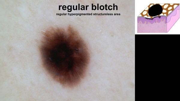 Regular blotch.jpg