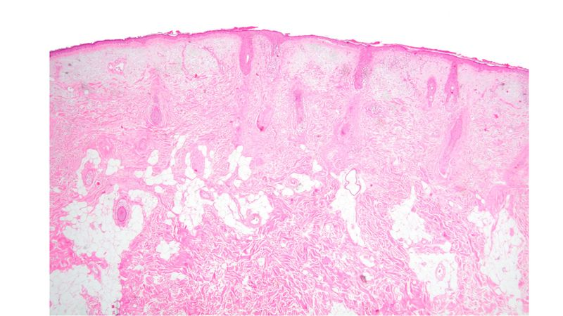 File:Histology nevus face.jpg