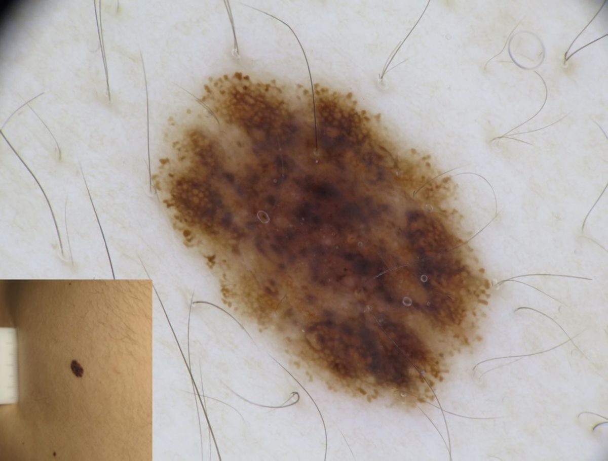 Figure 3: Dermoscopy of a nevus exhibiting only blue structures (score 1: benign lesion)