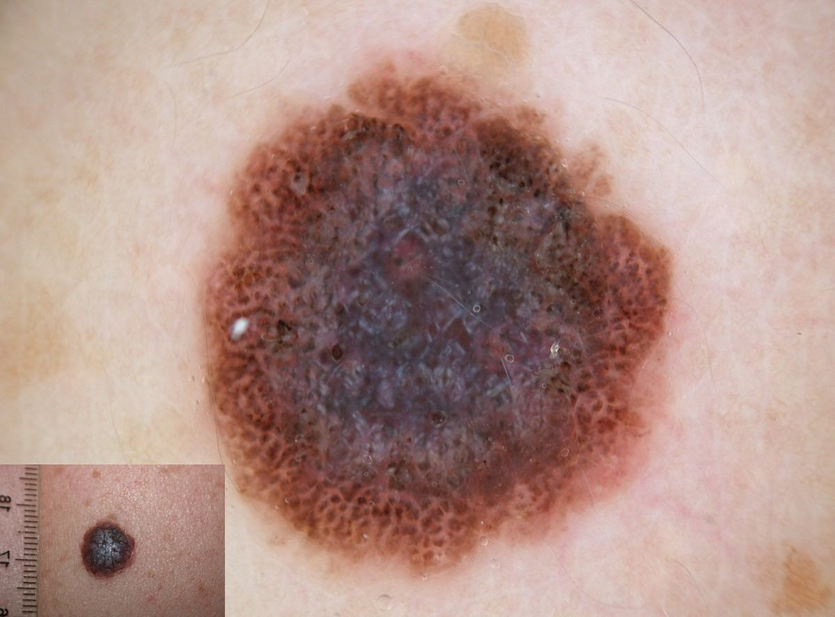Figure 7: This pigmented lesion, clinically resembling a dermal nevus, shows at dermoscopic examination blue-white veil in center, brown-black globules and whitish irregular lines. The lack of correlation between the clinical and dermoscopic features imposes the excision. Histopathologic diagnosis: melanoma (Breslow thickness: 0.9 mm)