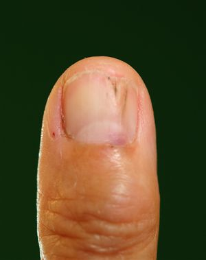 Nail plate erosion -clinical aspect